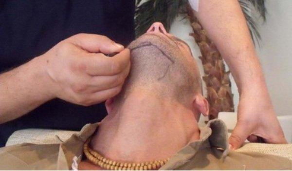 Мужчины ложатся под нож хирурга, чтобы пересадить бороду. ФОТО