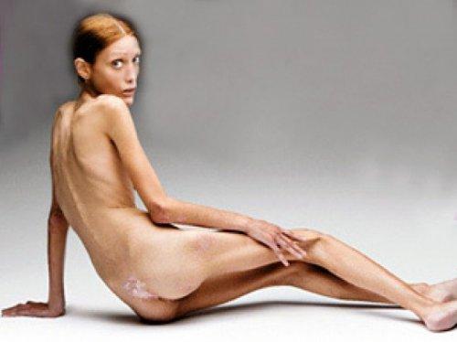 Смертельная худоба: жертвы анорексии среди звезд. ФОТО