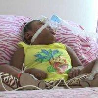 Девочка родилась без мозга, но сумела выжить! ФОТО