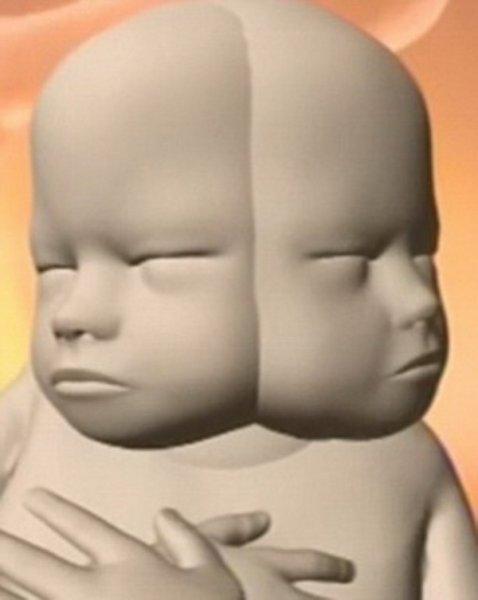 Женщина вынашивает двухголового ребенка и не собирается делать аборт. ФОТО