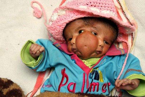 В Индии мальчик родился з двумя головами. ФОТО