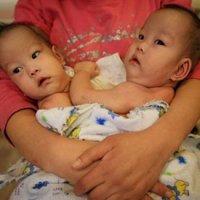 Женщина родила сиамских близнецов и выбросила их на улицу. ФОТО