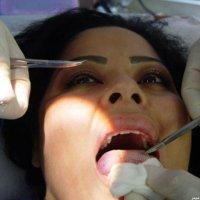 Чтобы похудеть, девушка пришила себе пластик на язык. ФОТО