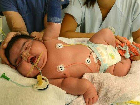 Гигантский ребенок родился в Германии. ФОТО