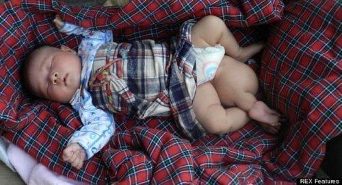 Бедный ребенок родился с тремя ногами. ФОТО